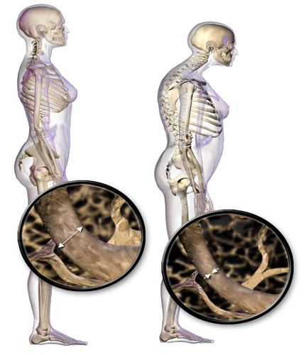 images/Osteoporosis.jpg